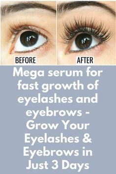 Mega serum for fast growth of eyelashes and eyebrows - Grow Your Eyelashes & Eyebrows in Just 3 Days Today I will share magical DIY skin whitening glowing serum to grow your eyelashes and eyebrows very fast. This method is very simple, natural and ef Natural Hair Mask, Natural Hair Styles, Natural Beauty, How To Grow Eyelashes, Eyebrows Grow, Long Eyelashes, Castor Oil For Eyelashes, Thicker Eyelashes, Long Natural Eyelashes