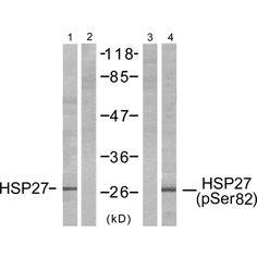 HSP27 Antibody (pSer82) - Rabbit Polyclonal antibody to HSP27 (pSer82). Species Reactivity: Human. Applications: WB, ELISA.