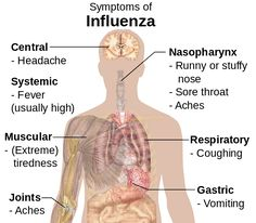Influenza symptoms chart