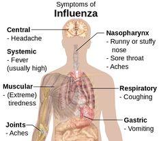Influenza symptoms chart