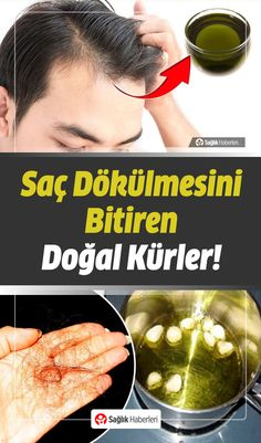 Saç Dökülmesi What are the reasons for hair loss that is seen in women as well as men and becomes depressing? How to prevent, what is good for hair lo. Hair Loss Reasons, Mini Dessert Recipes, Hair Loss Remedies, Hair Health, Natural Health, Beauty Hacks, Hairstyle, Ethnic Recipes, Blog