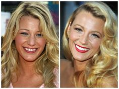 Blake Lively before and after porcelain veneers