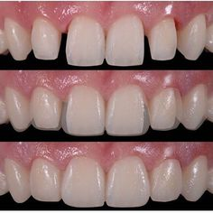 Dentaltown - Dental veneers (sometimes called porcelain veneers or dental porcelain laminates) are wafer-thin, custom-made shells of tooth-colored materials designed to cover the front surface of teeth to improve your appearance. These shells are bonded to the front of the teeth changing their color, shape, size, or length.