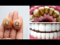 λεύκανση δοντιών στο σπίτι σε 2 λεπτά / αναθεώρηση για να λευκαίνουν φυσικά τα κίτρινα δόντια σας - YouTube Home Remedies, Natural Remedies, Healthy Potato Recipes, Tips Belleza, Cavities, Teeth Whitening, Healthy Drinks, Hair And Nails, Mascara