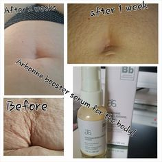 Transforming lives! The all new Arbonne Intelligence Genius booser serum seriously does amazing things. This lady used Arbonne RE9 body moisturiser, with a tiny bit of Genius serum day and night for 2 weeks and look what happened! #Arbonne #pure #safe #beneficial #nottestedonanimalsever Emma Bosworth, Independent Consultant with Arbonne International. ID#613443971