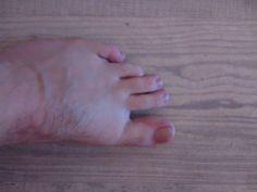 Dotaz FBAS: Prosím pěkně teď mi syn volal, že se mu na levé noze křivý prostředníček přes prst a že má i do něho křeče. Jde o člověka