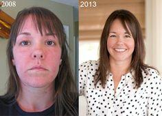 How I Reversed Hashimoto's (a Thyroid Autoimmune) Disease with Food. Gluten Free. Grain Free