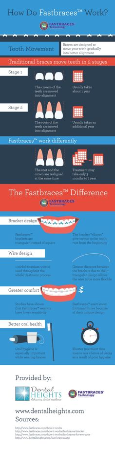 Patients who choose traditional braces can expect at least 2 years of treatment. Patients who choose Fastbraces can look forward to treatment taking only 3 months to 1 year! Learn more by reading through this infographic about orthodontics in Bloomingdale.