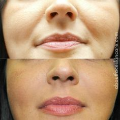 Nasolabial folds disappear with the use of Juvederm filler! #beauty #injections #skincare #liquidfacelift