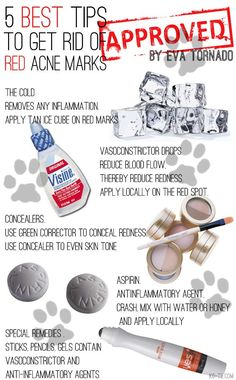 How To Get Rid Of Red Acne Marks. The BEST 5 tips!