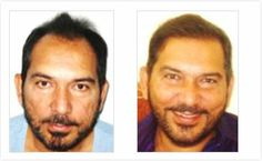 Arun lal:  Hair Regrowth Results Visit http://www.enhanceclinics.in/hairlossmain for more.
