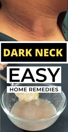 The dark neck comes in the form of black lines, dark spots, creases or patches making your skin look dirty and unattractive. We all pamper our face for getting glowing skin but forget to pay some attention towards the neck. Beauty Care, Beauty Skin, Beauty Hacks, Beauty Tips, Diy Beauty, Beauty Products, Beauty Ideas, Face Beauty, Homemade Beauty