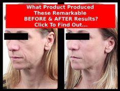 Best Anti-Aging/Anti-Wrinkle Creams - Avon Anew Reviews #avonproducts #avonrep #skincare #beauty #antiwrinkle #wrinklerepair