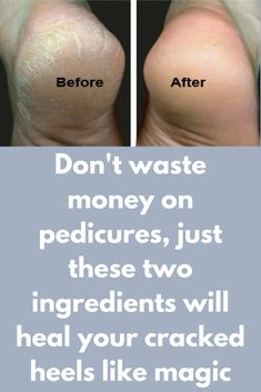 Don't waste money on pedicures, just these two ingredients will heal your cracked heels like magic Well-groomed feet are important for reasons that go beyond the aesthetic. Though it is not commonly known, our feet actually affect our general health. Nevertheless, they are often neglected. Using this simple method, it's easy to put more effort into caring for your feet, and the results are really impressive! We like to invest in regular …