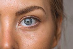 The Best Acne Treatment Guide: Achieve Clear Skin & Zero Pimples Eyebrow Hair Growth, Brow Growth Serum, Skin Toner, Oily Skin, Best Natural Foundation, Apple Cider Benefits, Jojoba, Derma Roller, Skin Whitening