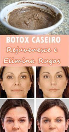 Botox caseiro para o rosto. Elimina rugas e rejuvenesce, resultados visíveis a partir da primeira aplicação.