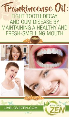 Frankincense Oil: Fight Tooth Decay and Gum Disease by Maintaining a Healthy and Fresh-Smelling Mouth Peppermint Essential Oil Benefits, Frankincense Essential Oil Benefits, Young Living Oils, Young Living Essential Oils, Essential Oil Blends, Frankincense Uses, Coconut Oil Pulling, Healthy Oils, Doterra Oils