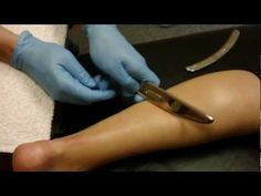 Graston Technique Treatment for Achilles Tendon Injury - Bozeman, MT Certified Sports Chiropractor soft tissue remodeling
