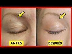 Le llaman la Mascarilla de Oro porque ayuda a eliminar las arrugas, manchas y el acné Aquí está la - YouTube