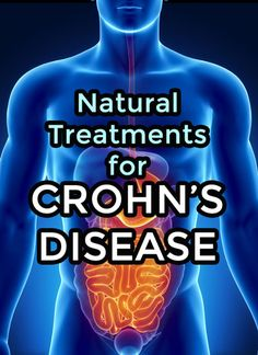 Crohn's Disease Natural Treatments- all types of natural approach. Scroll all the way through to find yours!