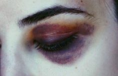 COLOR SCHEME: the tangerine and violet of her bruises