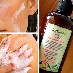 Acne Face & Body Wash
