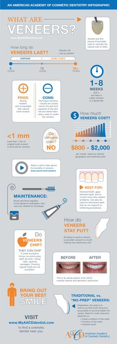 Great Infographic from the American Academy of Cosmetic Dentistry describing Dental Veneers. For more information check us out at http://www.gilmandds.com