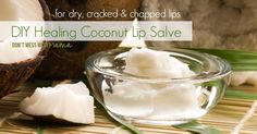 Got winter- or wind-burn skin? Try this DIY Rescue Skin Salve Recipe. It's nourishing and made with just two ingredients to moisturize skin.