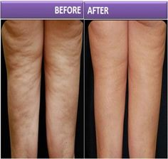 How to Get Rid Of Cellulite Naturally