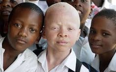 The boy was walking home with four friends when he was attacked on Saturday. It is the latest in a series of attacks of albino people, whose body parts are believed to bring luck (file picture). Beautiful Children, Beautiful People, Melanism, African Children, Seven Years Old, Dark Skin Tone, We Are The World, Shades Of Black, Body Parts