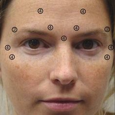(A) Patient before Botox injection of the forehead, glabella, and... | Download Scientific Diagram Botox Injection Sites, Botox Injections, Medical Esthetician, Nurse Aesthetic, Thread Lift, Facial Aesthetics, Botox Fillers, Body Organs, Skin Care Regimen