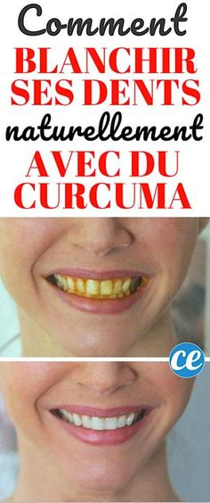 + How to Whiten Teeth + + + The Yellow + With + of + Curcuma + (+ Natural + And + Efficient). Skin Care Regimen, Skin Care Tips, Beauty Care, Diy Beauty, Beauty Hacks Eyelashes, Beauty Tips For Face, Oral Health, Good Skin, Healthy Skin