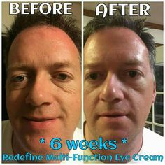 I LOVE the FACT that guys use these products as well! Check out these results...WOW!!  Fellow consultant's husband, David, started using REDEFINE Multi-Function Eye Cream just six weeks ago! His skin around his eyes is MUCH smoother and fine lines and wrinkles are diminishing!!   These products deliver results! Message me for details on our discount options!