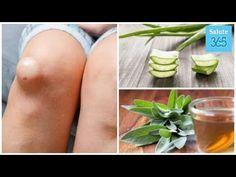 I 5 migliori antinfiammatori naturali per trattare il liquido nel ginocchio - Salute 365 - YouTube