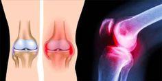 De knieën worden gebruikt in al onze bewegingen, ze worden blootgesteld aan grote druk en stress als gevolg van ons lichaamsgewicht. Namelijk, elke pond vet die je mee draagt komt
