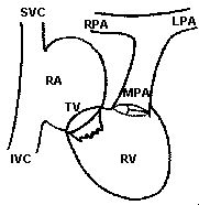 Mustard Repair of Transposition of the Great Arteries 1