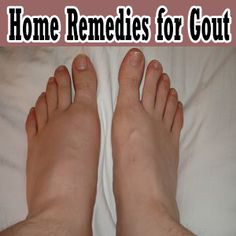 gout homeopathic medication lower uric acid by diet uric acid test values