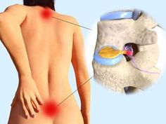 The Sciatic nerve begins in the lower back, runs through the gluteal muscles, and down the leg. This nerve supplies almost all feeling in the skin of the leg, the… Pinched Nerve Relief, Sciatic Nerve Relief, Sciatic Pain, Essential Oil For Sciatica, Essential Oils For Pain, Siatic Nerve, Nerve Pain, Spinal Nerve, Fitness Workouts
