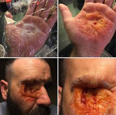 When you attempt burnt flesh technique by manipulating silicone under cling film and it looks like shit. Tear it off and glue… Spx Makeup, Makeup Fx, Creepy Makeup, Movie Makeup, Cosplay Makeup, Costume Makeup, Special Makeup, Special Effects Makeup, Halloween Kostüm