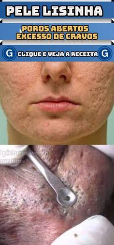 Aprenda esta receita para fechar os poros e ter uma pele lisinha! #aprenda #fechar #poros #eliminar #cravos #ter #pele #lisinha #receita #caseira #receitas Body Care, Eyelashes, Beauty Hacks, Beauty Tips, Facial, Make Up, Skin Care, Exercise, Fitness