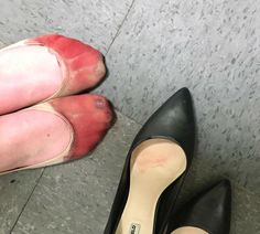 A photo on social media of a woman's bleeding feet after working a full shift as a waitress has been shared over 11,500 times in a week as the subject of compulsory high heels at workhas become an international talking point.  In a post on Facebook, Nicola Gavins criticised Joey Restaurants in Edmonton, Canada for forcing its female staff to wear shoes with at least a one inch heel.