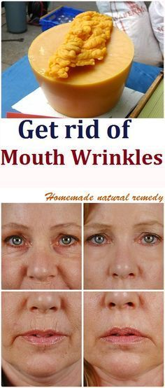 We all pay attention to the wrinkles around our eyes and neck but we mustn't forget our mouth. They could formed be from years of laughter, or stress or generally life, but fine lines start appearing around our mouth when we're 30 years or older. Continue reading...