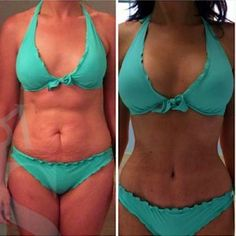 59d52c71a1 36 Best Cosmetic Surgery Contour Tummy Tuck Buttlift images in 2019 ...