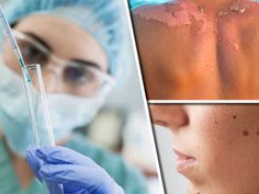 SKIN cancer spread can be stopped with a new drug which has been hailed as a 'highly effective' treatment.
