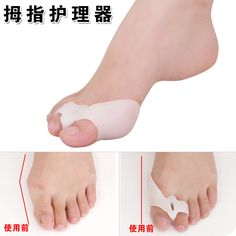 Silicone Gel foot fingers Two Toe Separator thumb valgus protector Bunion adjuster Hallux Valgus Guard feet care