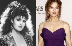 Bernadette Peters Plastic Surgery Before and After Pictures - Celebrity Plastic Surgery Bad Plastic Surgeries, Plastic Surgery Photos, Celebrity Plastic Surgery, Bernadette Peters, Under The Knife, Before And After Pictures, Strapless Dress, Celebrities, Dresses