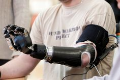 The DEKA is the First Prosthetic Arm to be Approved by The FDA