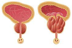 Il miglior lassativo naturale: espelle l'eccesso di liquidi e svuota completamente l'intestino