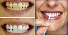 Los Dentistas ocultan esto. El método más rápido y eficaz para blanquear dientes
