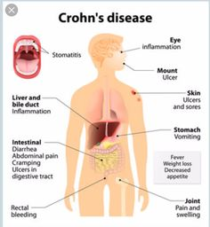 Crohn's Disease, Another Week in My Crohn's Life - It Could Be Worse Blog